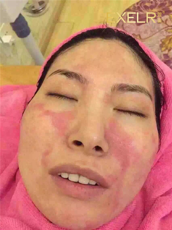 专业护理前:脸部因过敏出现大片红疹 哇,真不敢相信,这是护理完的